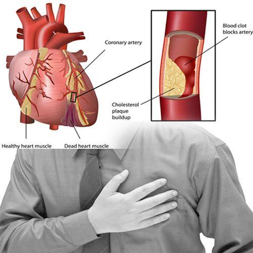alfit hipertenzija