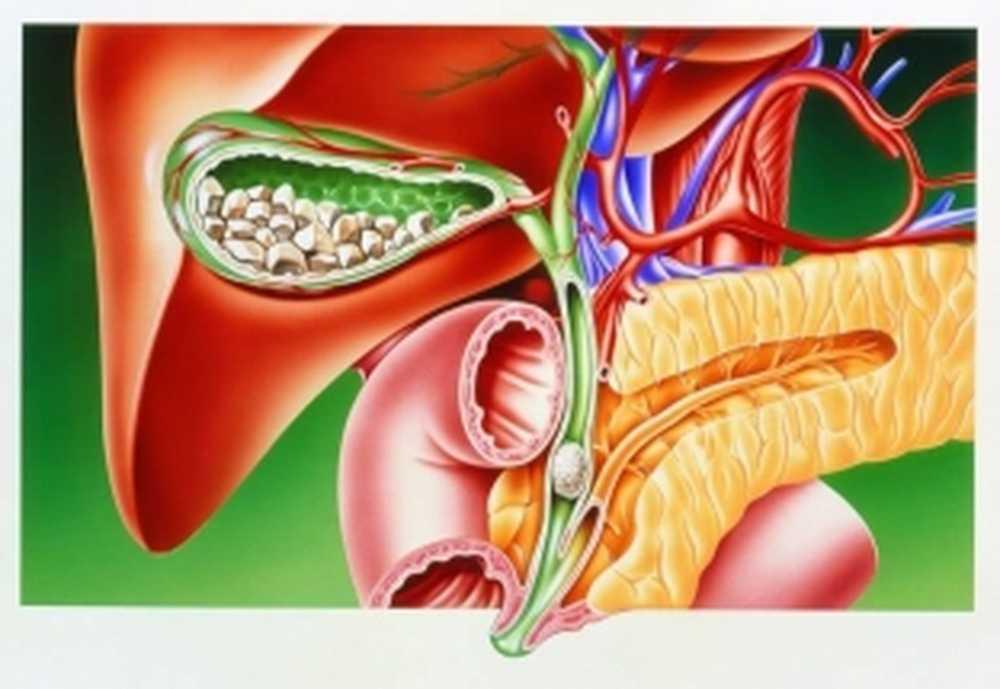 žučni kamenci uzrok hipertenzije