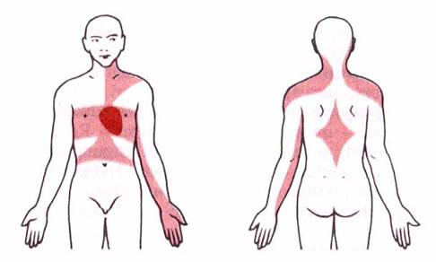 tablete za visoki tlak i angina pektoris počinje za liječenje hipertenzije