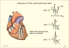 sinus hipertenzija