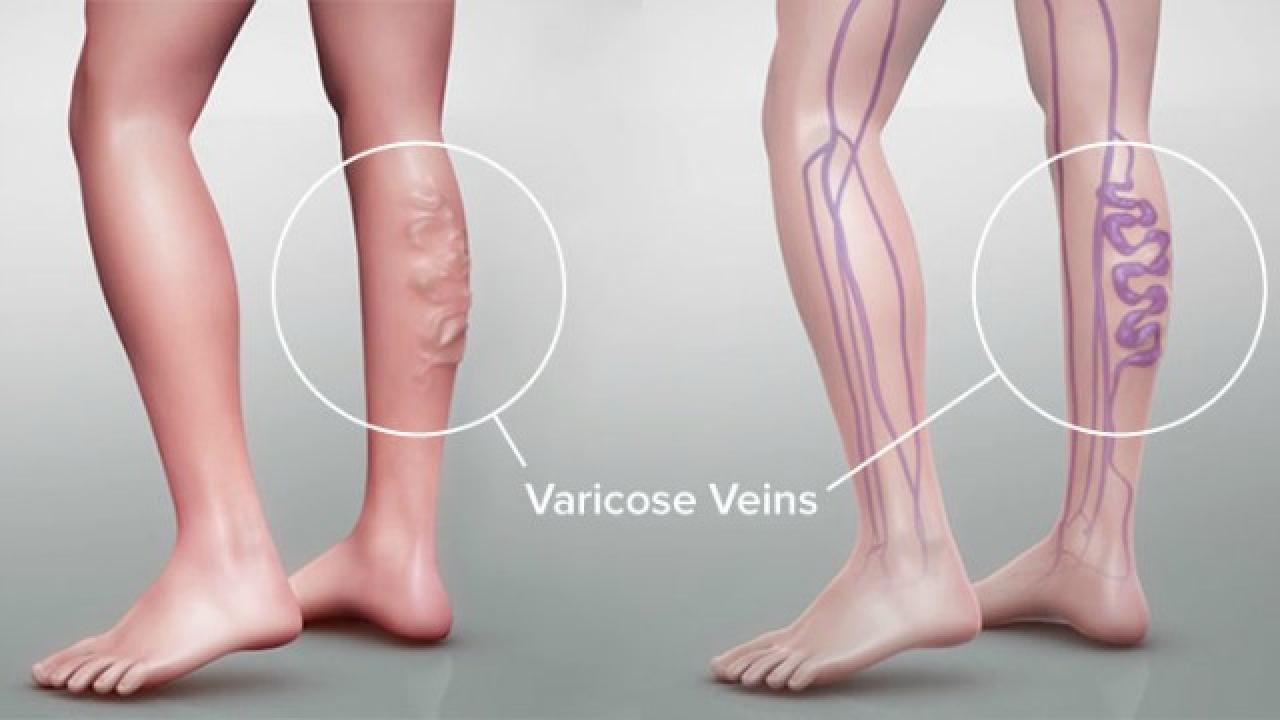 Poboljšana opskrba krvi udovima