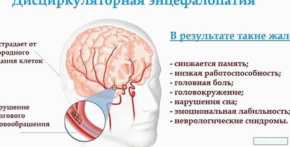 mozak hipertenzija u djece bezopasne tablete za hipertenziju