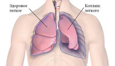 što 3stadiya hipertenzija lijekovi za liječenje dijabetičke hipertenzije