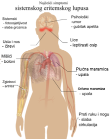 ukusan hipertenzija postoje li mandarine s hipertenzijom
