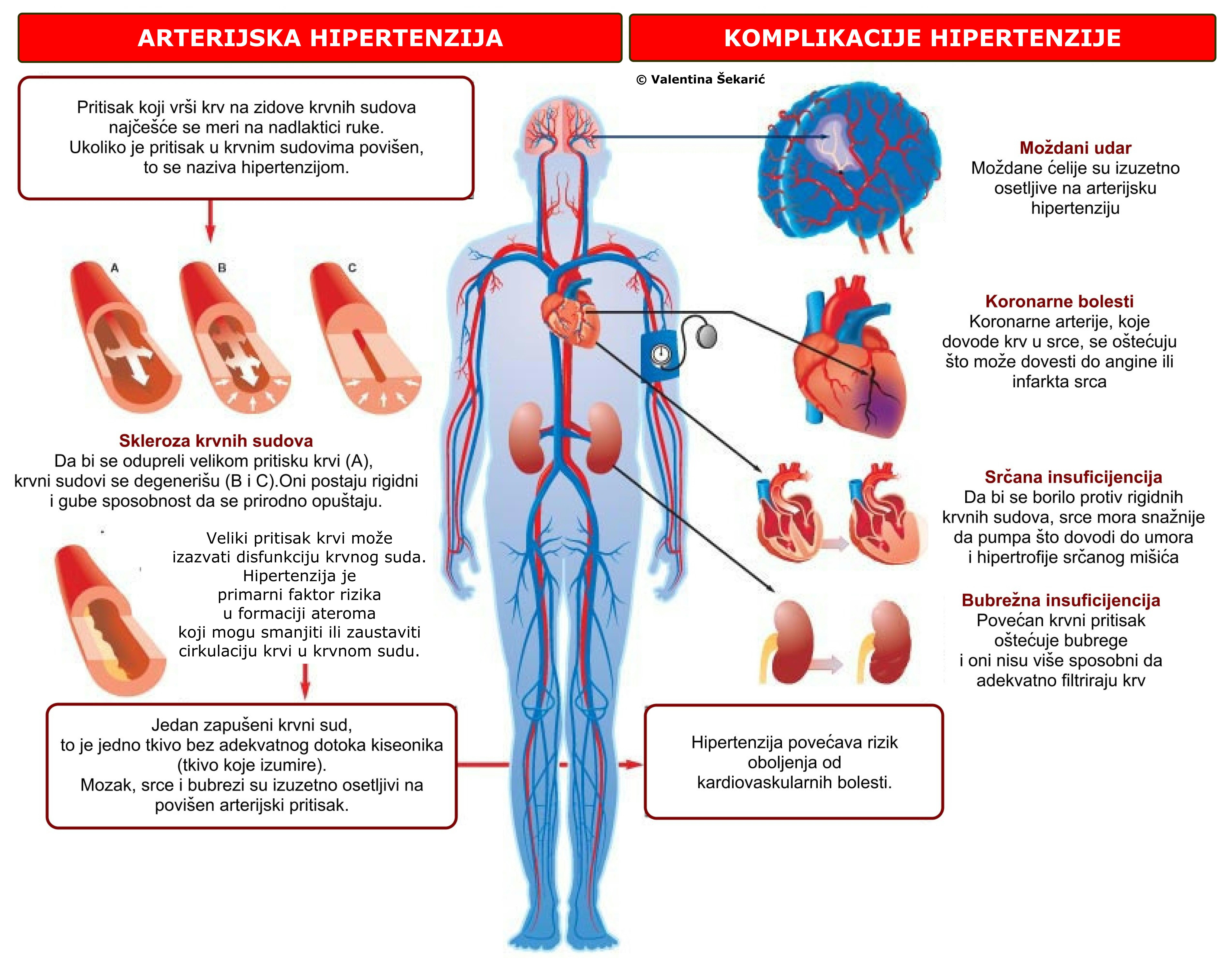 najučinkovitiji i siguran lijek za hipertenziju