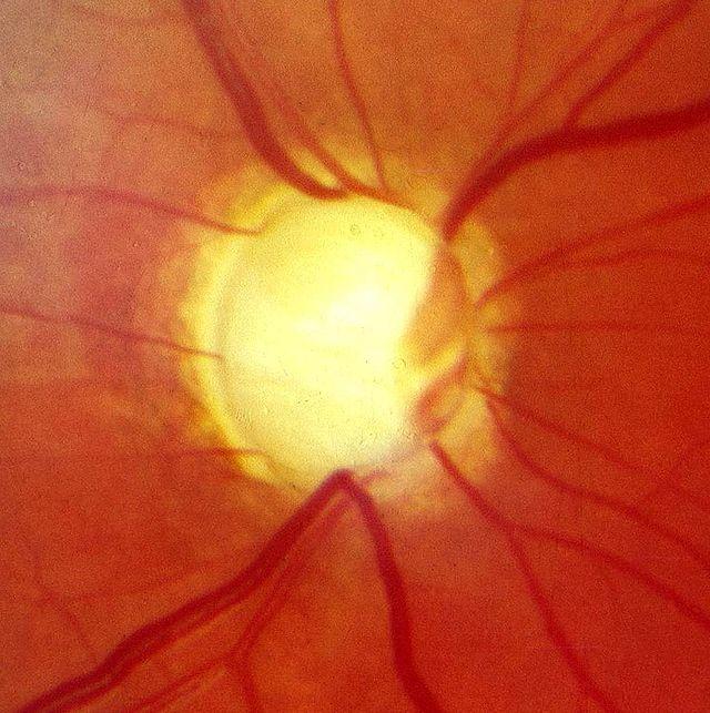 Glaukom ili očni tlak?