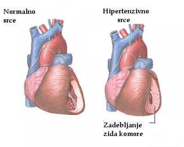 uzroci primarnom hipertenzijom
