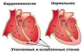 trimetazidin limenke hipertenzija hitna pomoć za hipertenziju kapi