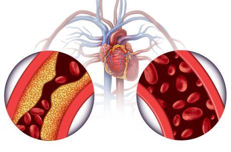 kako zaboraviti hipertenzije