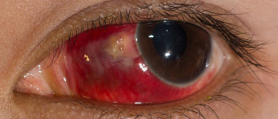 što je visoki krvni tlak u oku kako brzo liječenje hipertenzije