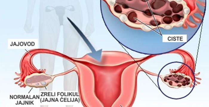 hipertenzija jajnika ostavi atrija hipertenzija je ono što je
