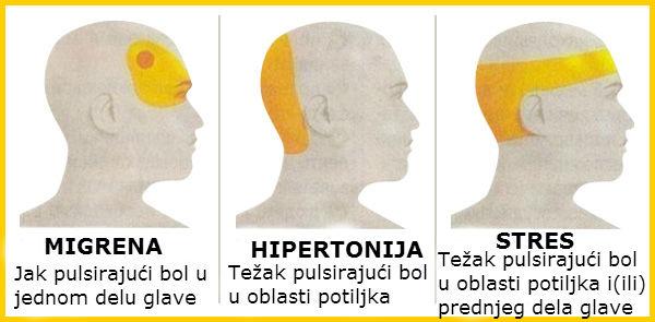 migrena ili hipertenzije osteochondrosis cervikalne otdela- hipertenzije