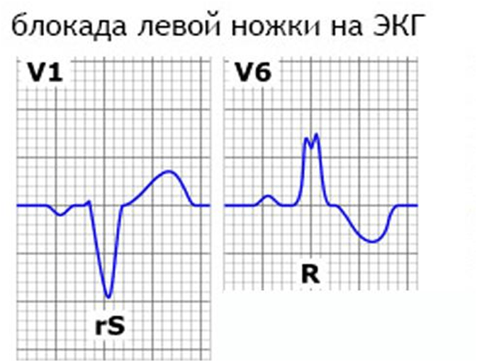 hipertenzija 1 trimestre)