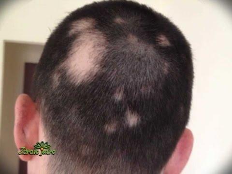 alopecijos hipertenzija