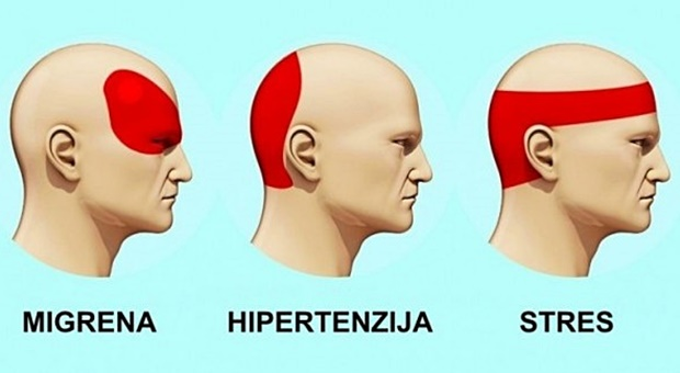 hipertenzija glavobolje sužene žile u hipertenzije
