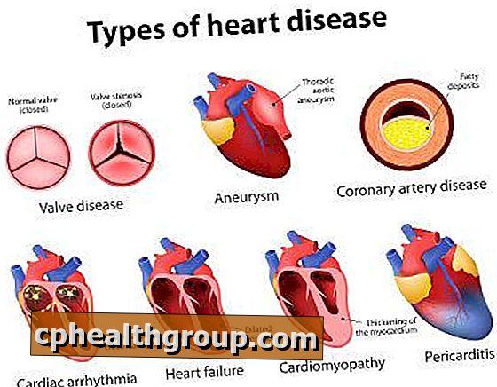 hipertenzija drugog stupnja. to