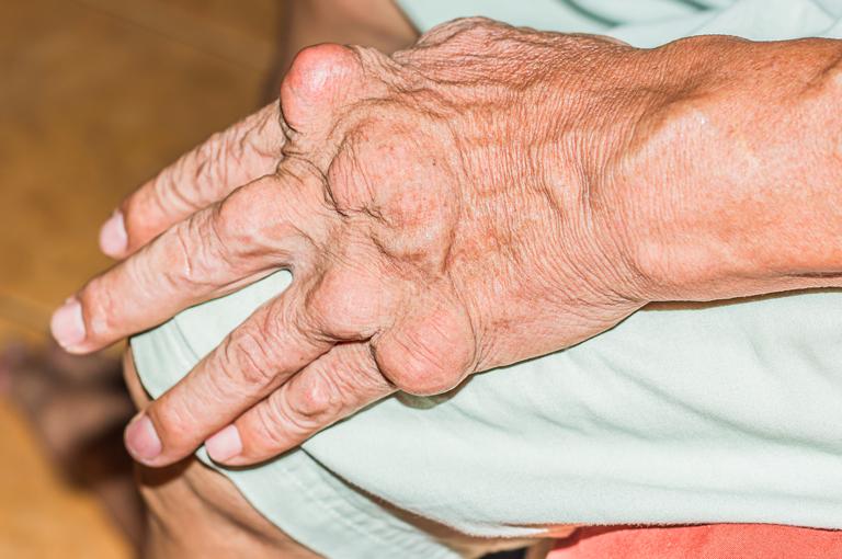 za liječenje hipertenzije, giht tablete za hipertenziju dobro