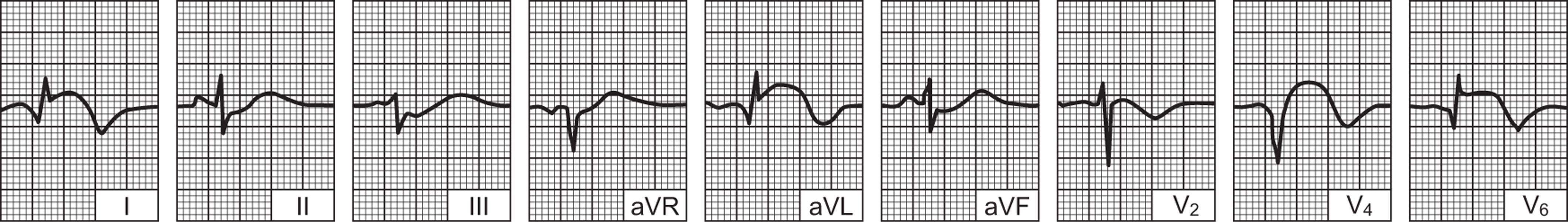 anestetik hipertenzija