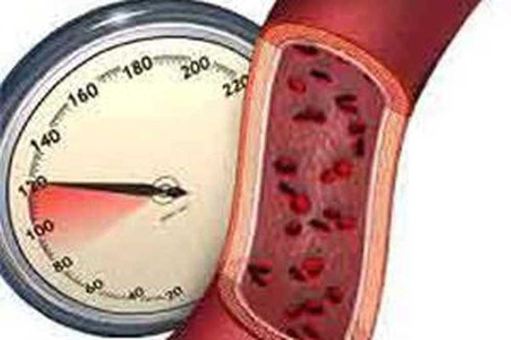 stupanj 2 hipertenzija stupnja 3 liječenje