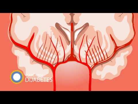 hipertenzija u prvom tromjesečju