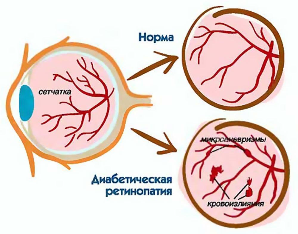 norvasc za visoki krvni tlak skuša od hipertenzije