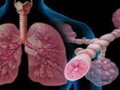 Parcele iz hipertenzijskog bronhitisa