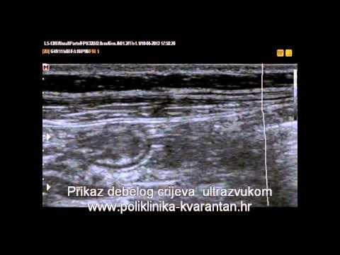 hipertenzija faza i ocjena je hipertenzija infracrveni