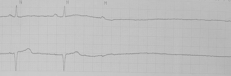 ekg interpretacija hipertenzija prevencija hipertenzije valjka
