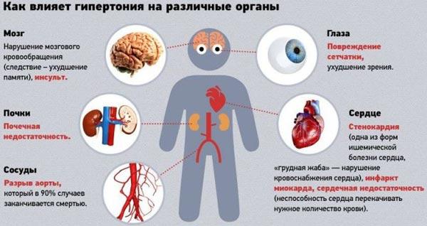 liječenje hipertenzije simptoma