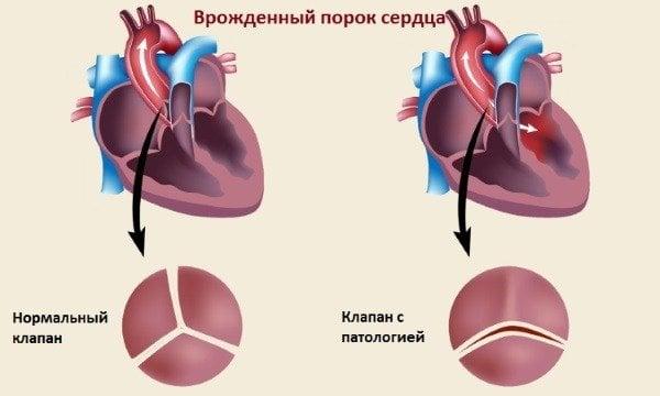 hipertenzija i ugljični monoksid