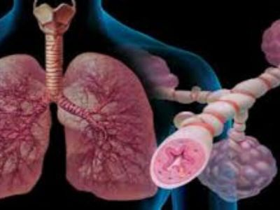 hipertenzija, akutni bronhitis