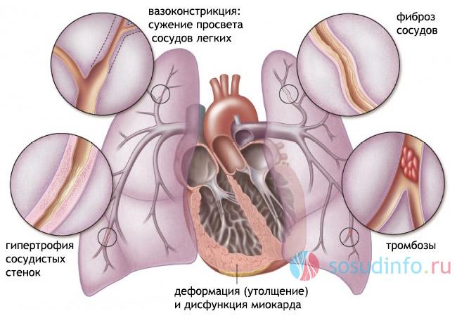 hipertenzija je sistemska bolest