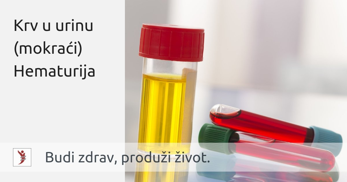 hipertenzija propisana dijeta jeftini sredstva iz hipertenzije učinkovitu