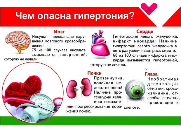 hipertenzija stupnja 2 kardijalnih oštećenja