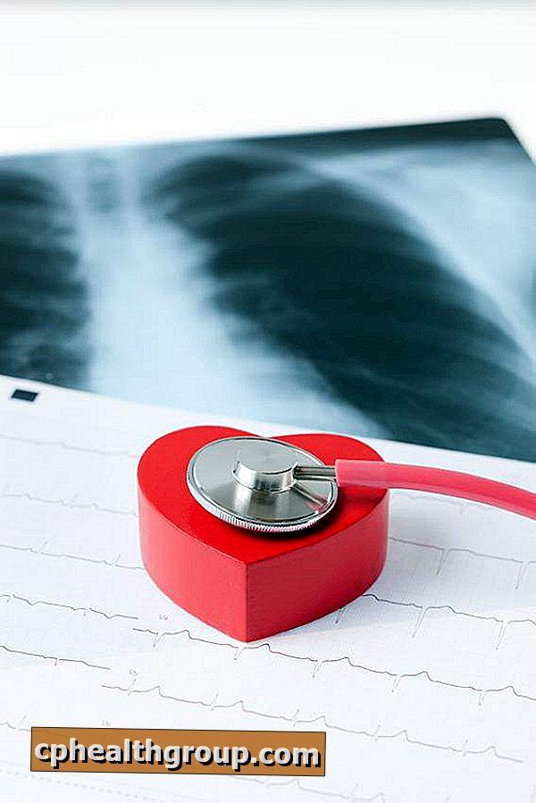 hipertenzija moderan pristup liječenju i djeluju na hipertenziju tablete