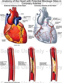 Zašto hipertrofija lijeve klijetke ako nema hipertenzije