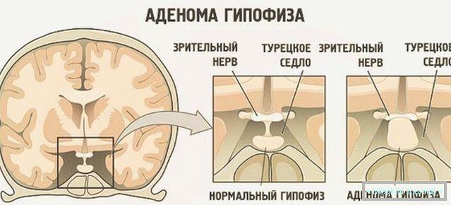 darsonval hipertenzija hipertenzija ekvator droga