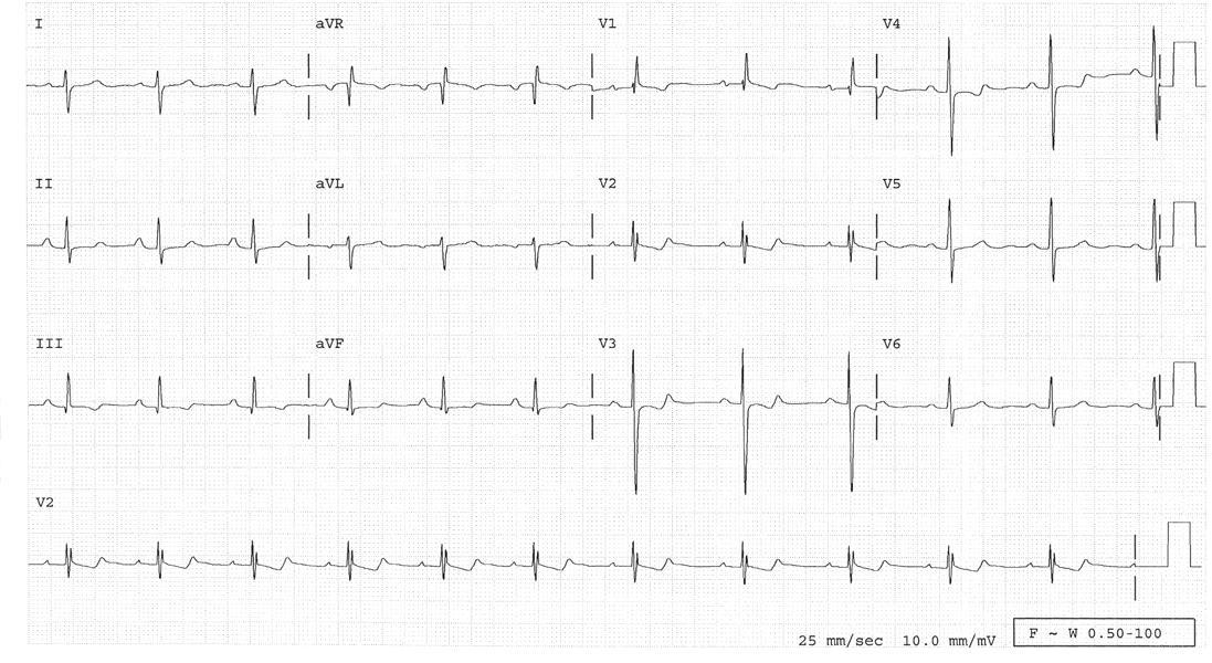 posljedice hipertenzije, plućne cirkulacije unutarnja hipertenzija