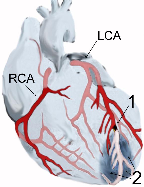 hipertenzija bez oštećenja organa