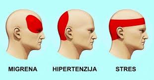 tretman hipertenzija za glavobolju da li je moguće da se rad u hipertenzije