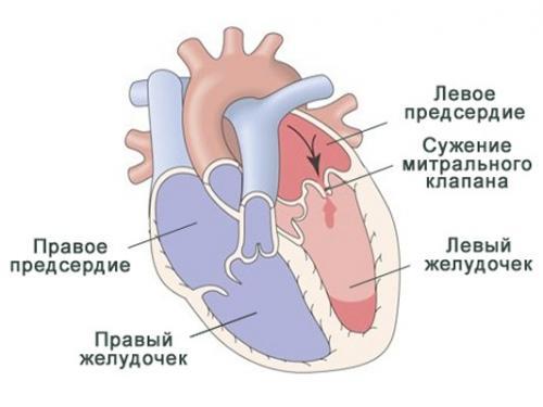 tupa bol u srcu što učiniti
