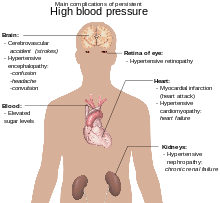 kakav bolesti je visoki krvni tlak koji označava
