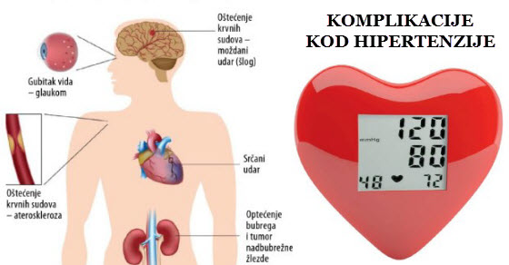 liječenje simptoma i prevenciju hipertenzije hipertenzija zbog srca