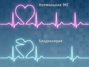 tenorik hipertenzija