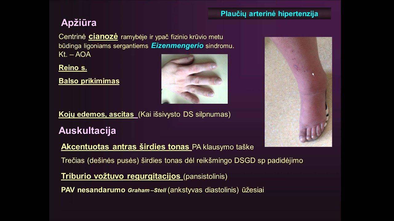 hipertenzije i implantaciju hipertenzija i njegove opasnosti