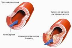 hipertenzija i invalidnost encefalopatija