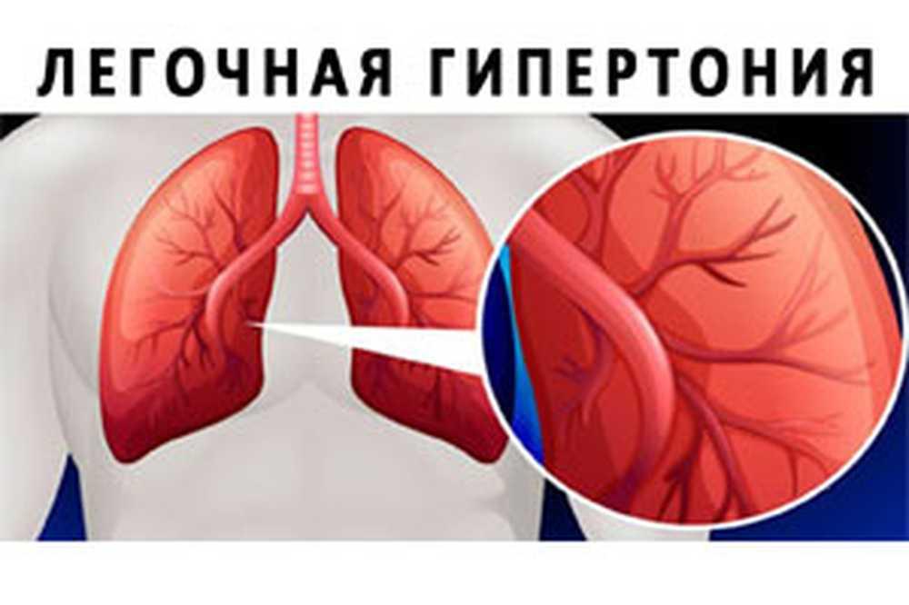 1- hipertenzija stupanj 3 liječenje