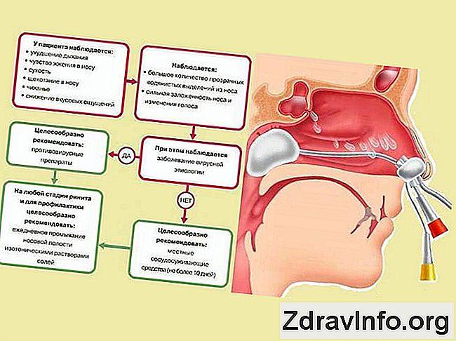 rinitis, hipertenzija rehydron hipertenzija