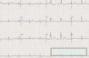 hipertenzija i sinusne bradikardije