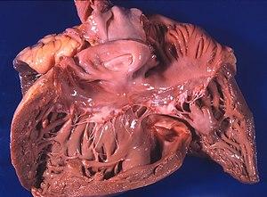 medicinska enciklopedija hipertenzija nefrogena liječenje hipertenzije